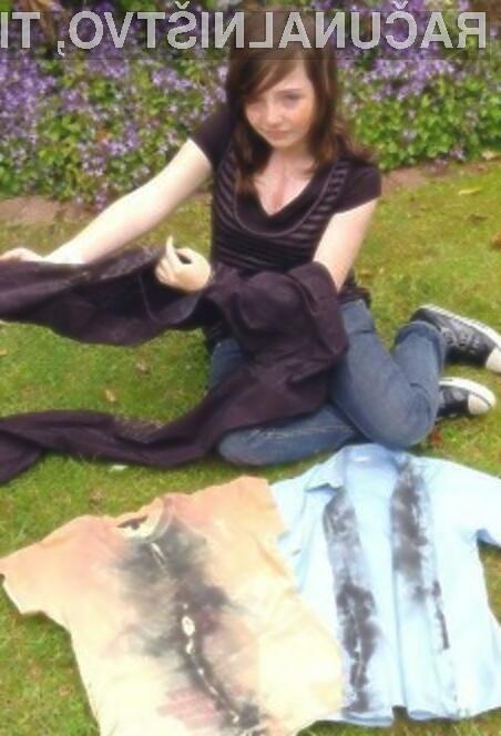 Sophie Frost z oblačili, ki so e poškodovala med udarcem strele.