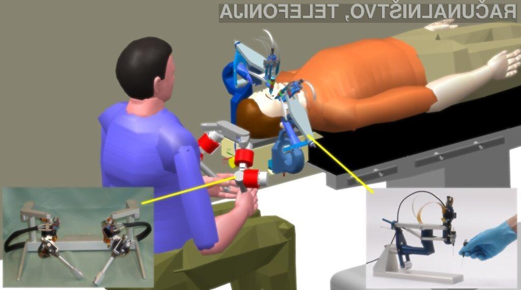 Nov robot bo spremenil področje oftalmologije in predvsem zmanjšal, če že ne odpravil število zdravniških napak pri posegih.