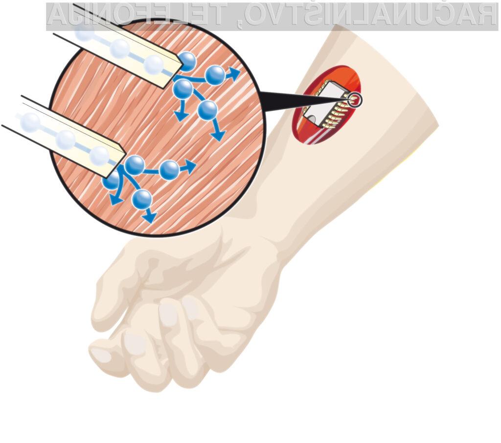 Nove čipe bi lahko vgrajevali tudi neposredno v človeško telo.