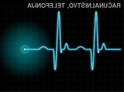 Uporaba srčnega utripa v vlogi gesla naj bi bila tako rekoč 100-odstotno varna!