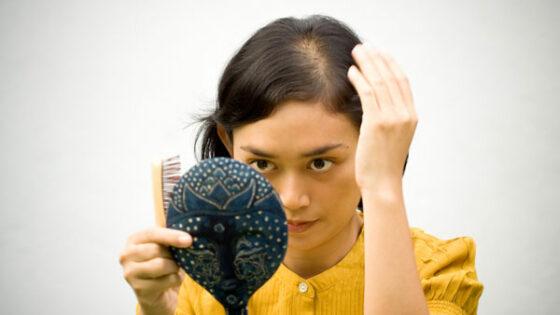 V 90 % primerih je vzrok izpadanja las androgena plešavost, ki prizadene tako ženske kot moške vseh starosti.